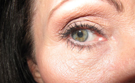 Eyes Bad 1 Before Botox Latisse