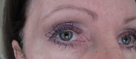 Eyes Good 2 After Botox Latisse