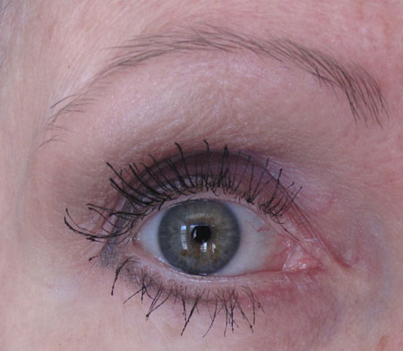 Eyes Good 3 After Botox Latisse